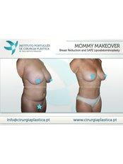 Mommy Makeover - Instituto Portuges de Cirurgia Plastica at Clinica Particula