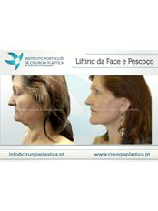Neck Lift - UP HPA