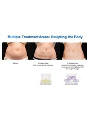 Coolsculpting  43% Discount - Aesthetic & Dental Surgery