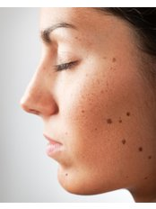 Mole Removal - APAX Medical & Aesthetics Clinic