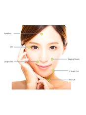 Thread Lift for Face/Neck - APAX Medical & Aesthetics Clinic