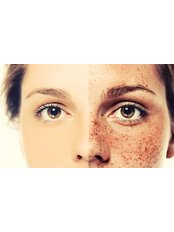 Pigmentation Treatment - APAX Medical & Aesthetics Clinic