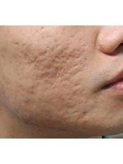 Acne Scars Treatment  - APAX Medical & Aesthetics Clinic