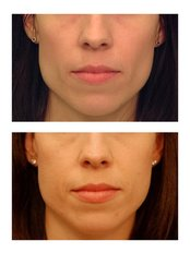 Cheek Augmentation  - The Face & Body Place