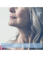 Neck Lift - The Face & Body Place