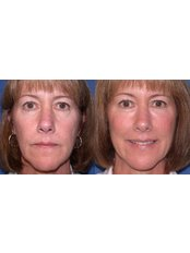 Chin Augmentation - The Face & Body Place