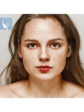 Pigmentation Treatment - The Face & Body Place