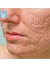 Acne Scars Treatment - The Face & Body Place