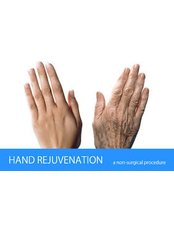 Hand Rejuvenation - The Face & Body Place