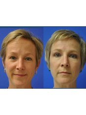 Non-Surgical Eye Lift - The Aesthetics HQ