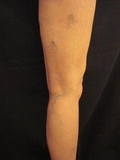 Sclerotherapy - Marbella Vein and Beauty Clinic