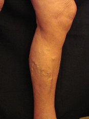Spider Veins Treatment - Marbella Vein and Beauty Clinic