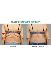 Bra-Line Back Lift - Rattinan Clinic