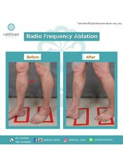 Radiofrequency Ablation of Varicose Veins - Rattinan Clinic