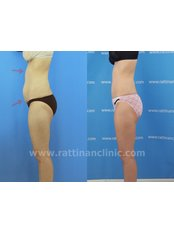 Liposuction - Rattinan Clinic