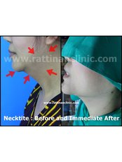 Neck Liposuction - Rattinan Clinic