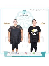 Gastric Sleeve - Rattinan Clinic