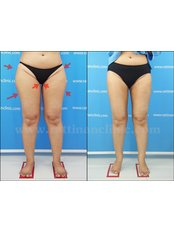 Thigh Liposuction - Rattinan Clinic