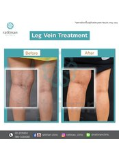 Sclerotherapy - Rattinan Clinic