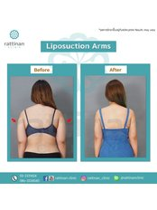 Arm Liposuction - Rattinan Clinic