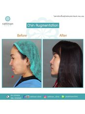 Chin Augmentation - Rattinan Clinic