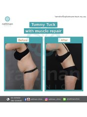 Tummy Tuck - Rattinan Clinic