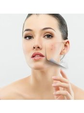Laser rejuvenation - Derma Plus Clinic Phuket