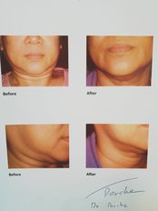 Non-Surgical Facelift - Derma Plus Clinic Phuket