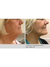 Thermi RF Treatment - Dr. HT Clinic