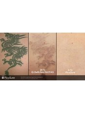 Tattoo Removal - Dr. HT Clinic