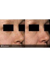 Pigmentation Treatment - Dr. HT Clinic