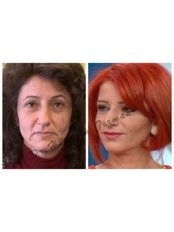 Non-Surgical Facelift - Dr. HT Clinic