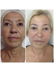 Facial Rejuvenation - Pervin Dinçer Beauty Consultancy Nişantaşı