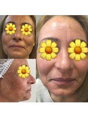 Spot (blemish) Treatments - Pervin Dinçer Beauty Consultancy Bakırköy