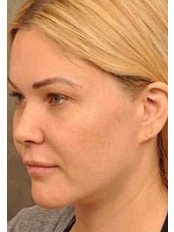 Non surgical Facelift  - Miaclinics