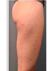 Cellulite  in ONE SESSION - Miaclinics