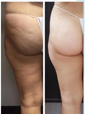 Cellulite Treatment - Pervin Dinçer Beauty Consultancy Bakırköy
