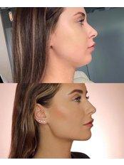 Chin Augmentation - Pervin Dinçer Beauty Consultancy Bakırköy