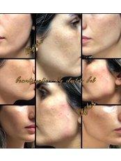 Chin Augmentation - Pervin Dinçer Beauty Consultancy Nişantaşı