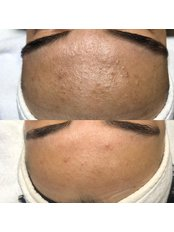 Salt Facial - Pervin Dinçer Beauty Consultancy Nişantaşı