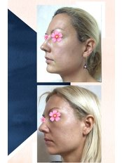 Focus Ultrasound - Pervin Dinçer Beauty Consultancy Nişantaşı