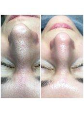 Hydrafacial - Pervin Dinçer Beauty Consultancy Nişantaşı