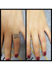 Tattoo Removal - Pervin Dinçer Beauty Consultancy Nişantaşı