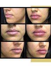 Dermal Fillers - Pervin Dinçer Beauty Consultancy Nişantaşı
