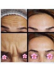 Allergan - Pervin Dinçer Beauty Consultancy Nişantaşı