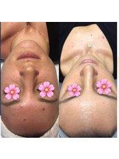 Baby Face - Pervin Dinçer Beauty Consultancy Nişantaşı