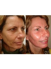 Deep Chemical Peel - The Chiltern Medical Clinic - Goring on Thames