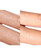 Laser Hair Removal - Fingers - Package of 6 - The Chiltern Medical Clinic - Goring on Thames