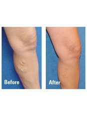Spider Veins Treatment - The Chiltern Medical Clinic - Goring on Thames