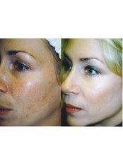 IPL Skin Rejuvenation - The Chiltern Medical Clinic - Goring on Thames